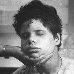 Young man with large, poorly stitched head wound, circa 1970s